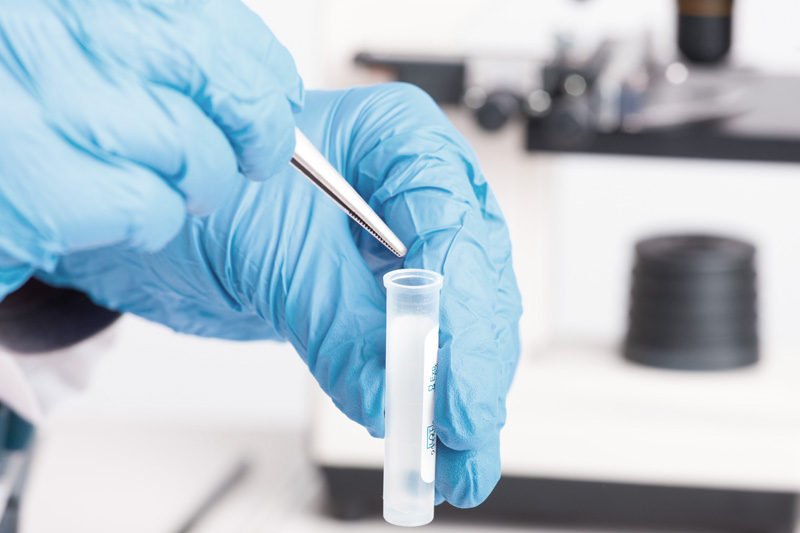 Quick Test vs  Lab Test Drug Screening - I & O Medical Centers